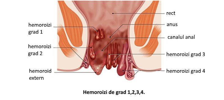 hemoroizii provoacă pierderea în greutate